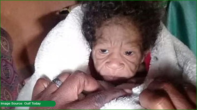 african-baby-girl-looks-like-elderly-woman-here's-why!